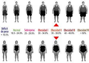 imc hm obesidad ii